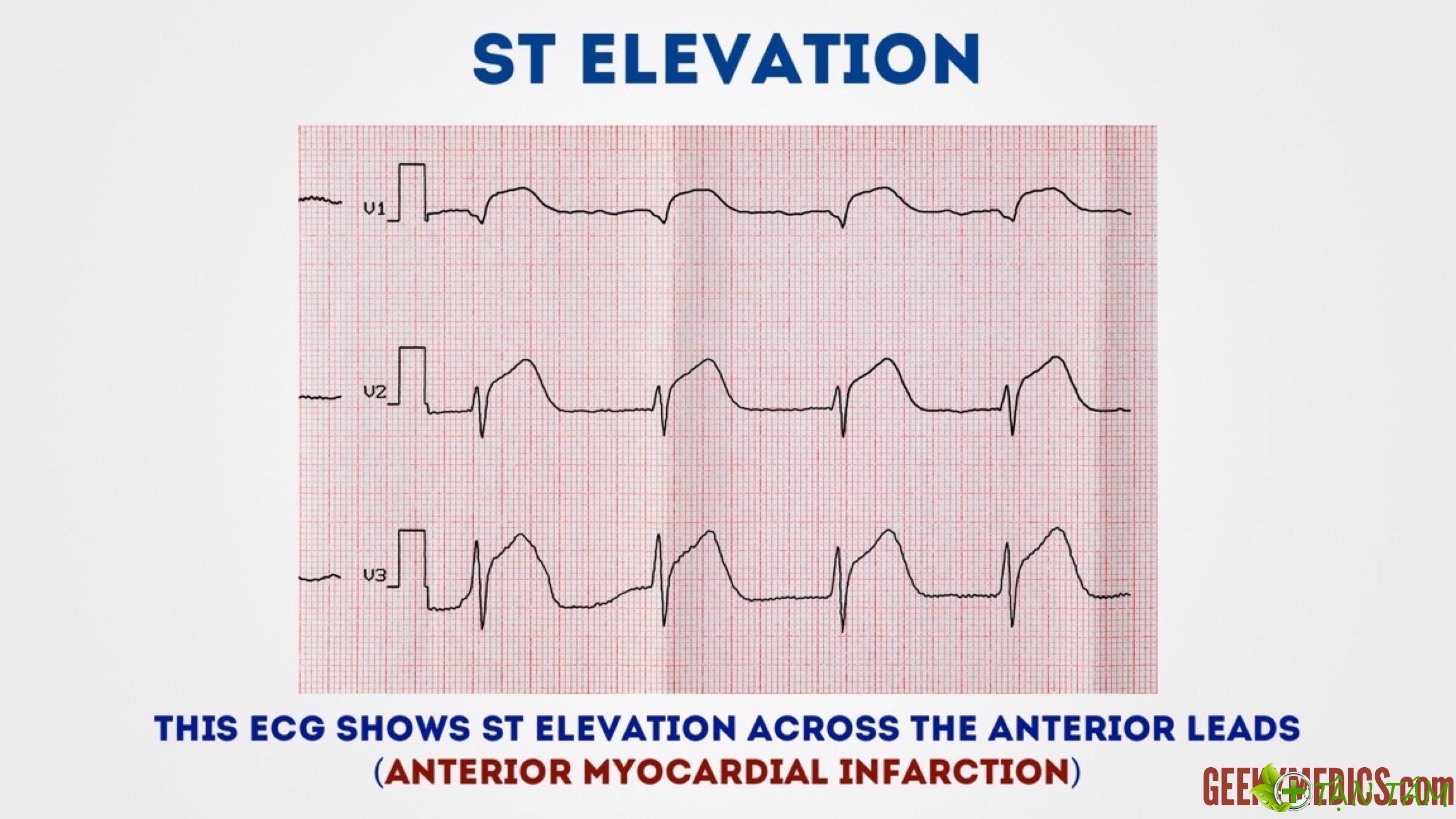 5 cách đọc điện tâm đồ đơn giản nhất và các bệnh lý tim mạch liên quan