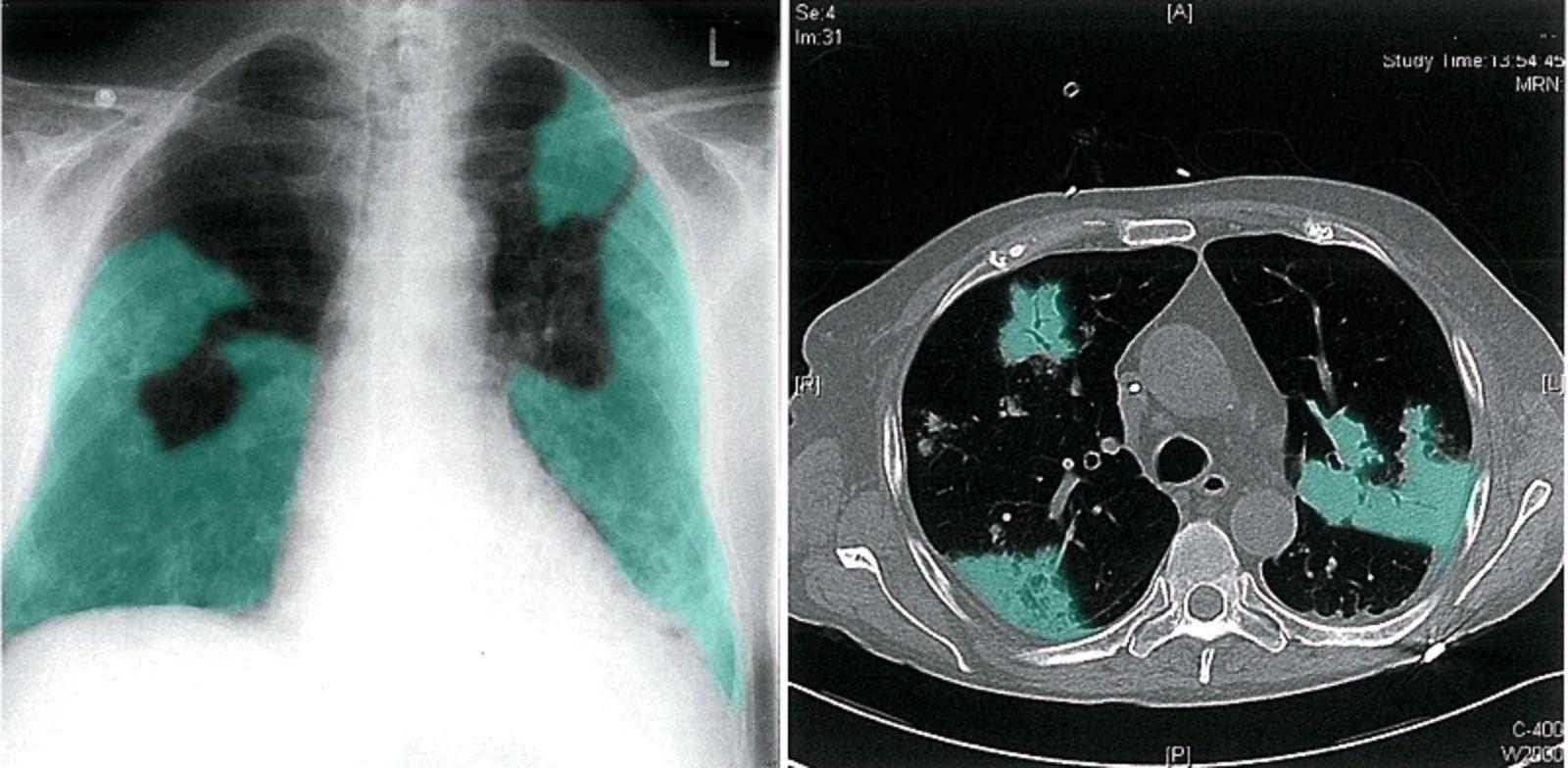 3 Cách phát hiện sớm những dấu hiệu viêm phổi ở trẻ sơ sinh