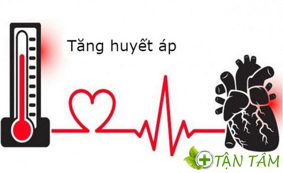 Nguyên nhân cao huyết áp là gì?