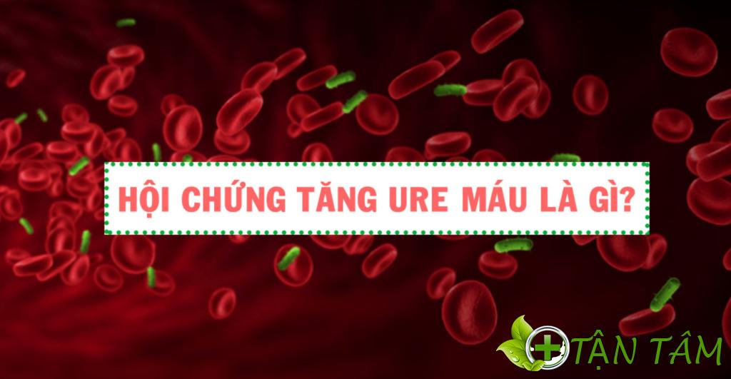 Hội chứng ure huyết cao là gì?