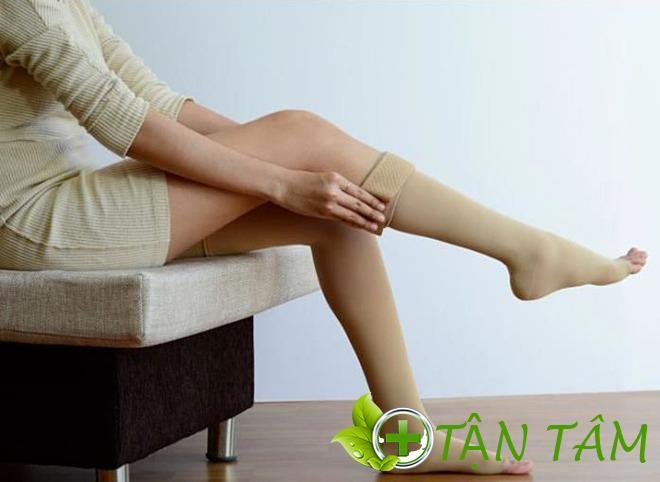 5 cách trị giãn tĩnh mạch chân tại nhà đơn giản mà hiệu quả