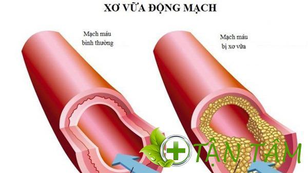 Khám phá hệ thống mạch máu trong cơ thể người với những thú vị ẩn giấu
